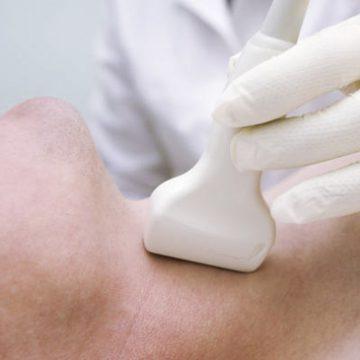 ecografia_tiroide